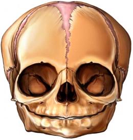 Cranial facial microsoma